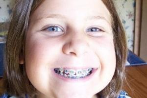 apparecchio-denti-400