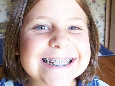 apparecchio-denti-400.180x120
