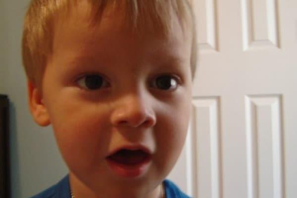 Rotacismo e balbuzie nei bambini