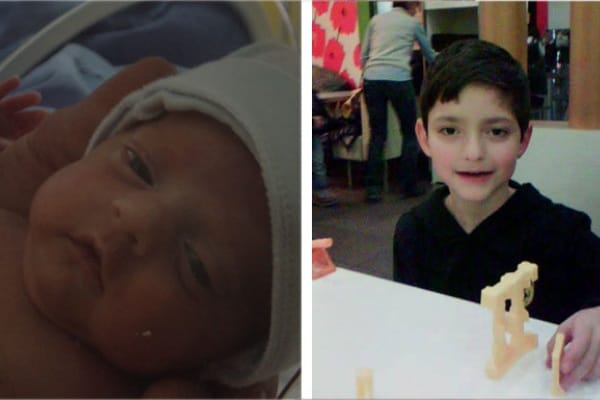 Storia di Francesco, nato a 26 settimane. Pesava solo 600 grammi