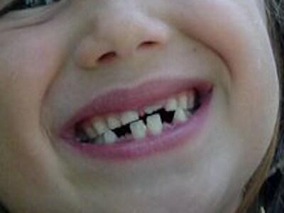 denti-bambini-400.180x120