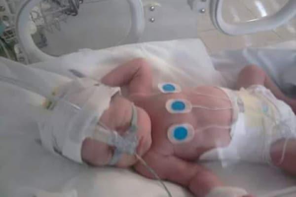 Bambini prematuri: le vostre EMOZIONANTI storie a lieto fine con FOTO