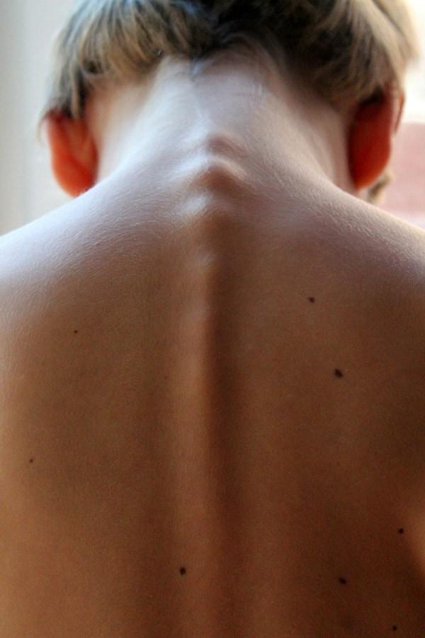 schiena